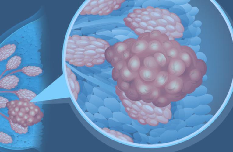 几乎100%杀死转移癌细胞 美国造出乳腺癌新药